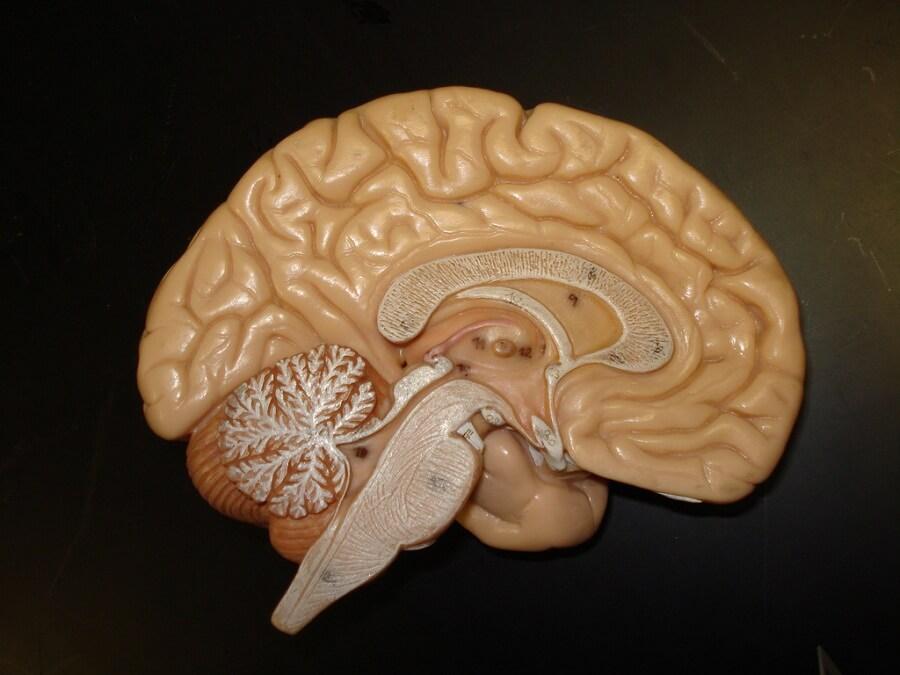 Aprendizado Cérebro