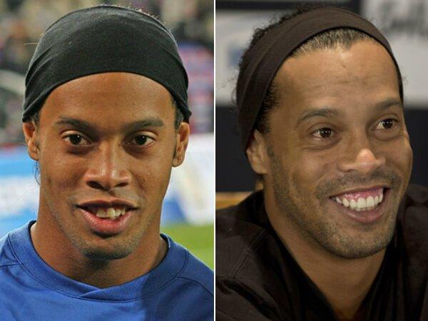 Ronaldinho Gaúcho: Lente de contato dental